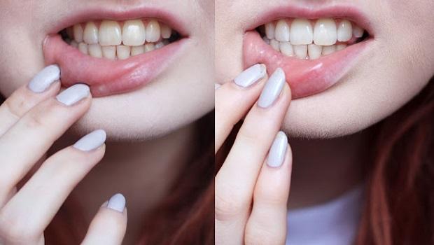 kako-izbeliti-zube-prirodnim-putem-brzo-i-lako